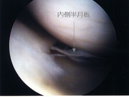 Arthroscopic medial Meniscus