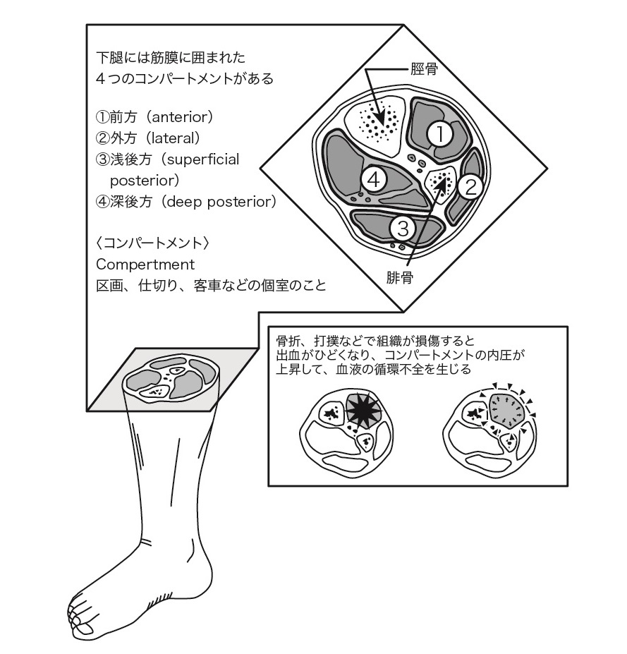Compartment syndrome diagram