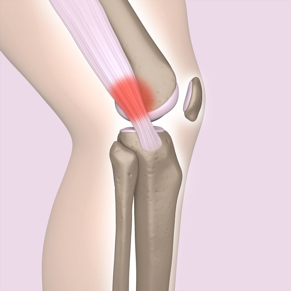 Painful site of enterotibial ligament inflammation