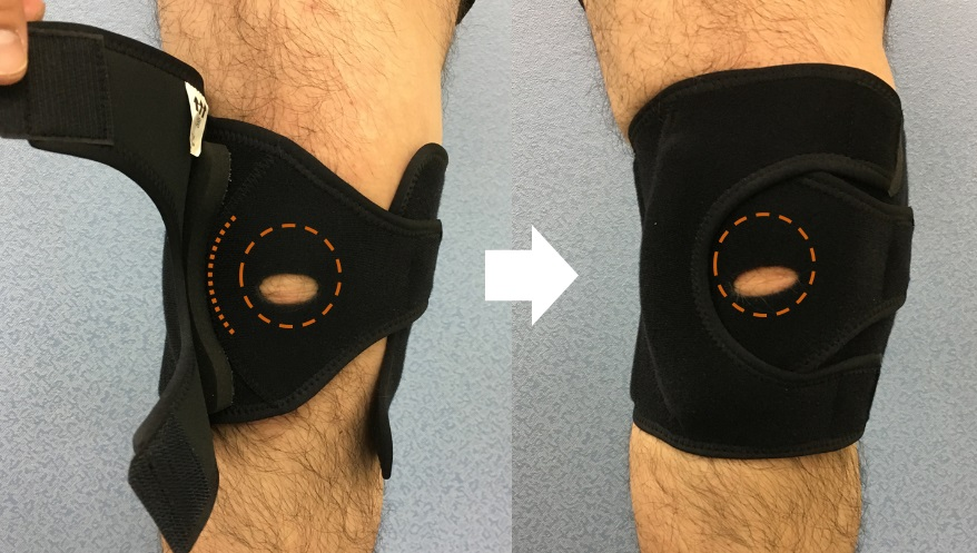 Dynamic patellar brace